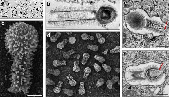 Descubren en Sudamérica los virus más grandes hasta ahora Vistos